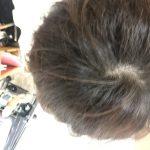 薄毛は髪が多い人ほど気になるって本当?